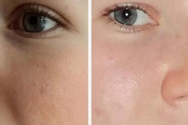 фото до и после чистки labelle l5 - 5